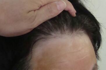 武汉白癜风疾病诊断的途径