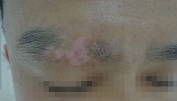 武汉白癜风患者病因有哪些