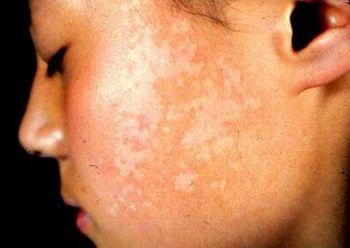 儿童白癜风的皮肤要怎么治疗是正确的呢