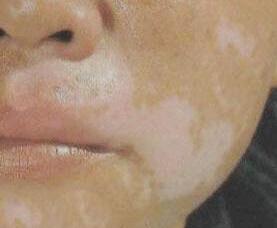 武汉脸上的白斑是白癜风需要怎么确诊?