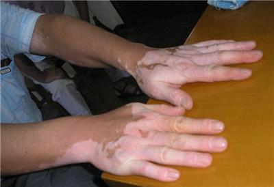 武汉手部白癜风如何做皮肤护理?