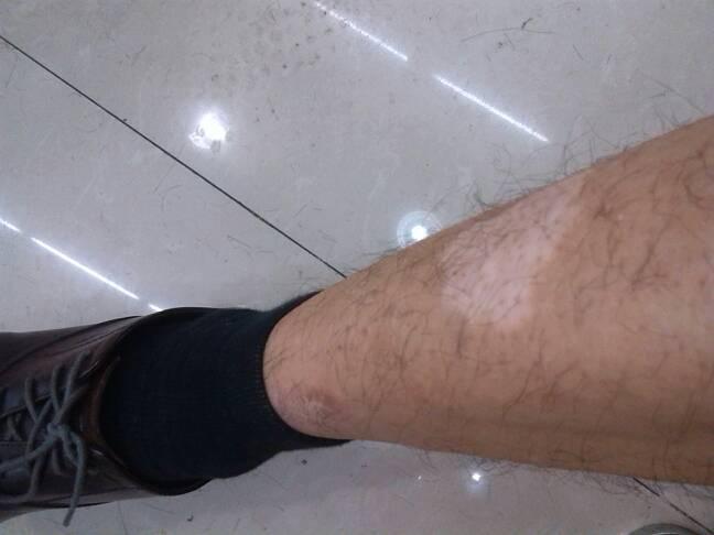 武汉腿部白癜风出现哪些症状呢?