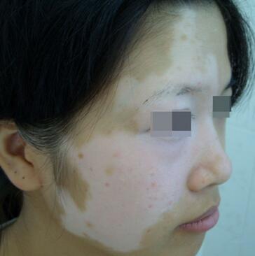宜昌治疗白癜风医院?武汉如何能防止脸上长白癜风呢?